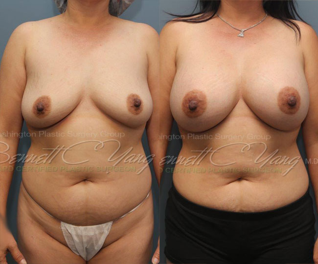 breastaugmentation.after.subfascial.bennettyangmd.wm.front_before_after