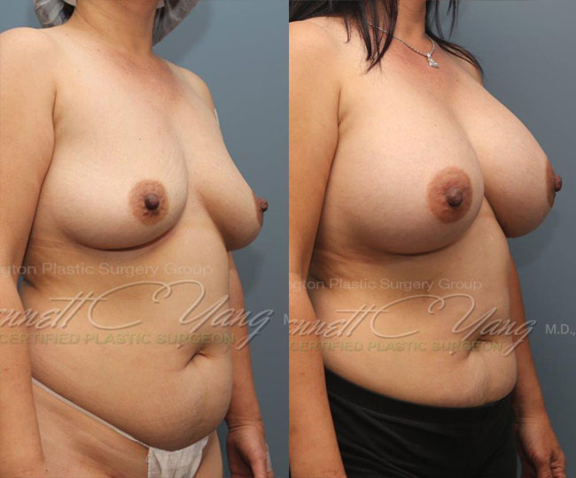 breastaugmentation.after.subfascial.bennettyangmd.wm.front_before_after2