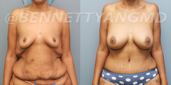 After-Weight-Loss-2d-before_after-2