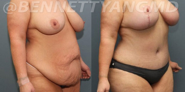 After-Weight-Loss-2d-before_after-2ei
