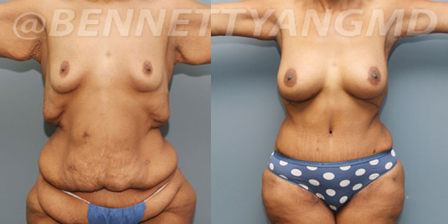 After-Weight-Loss-2d-before_after-2tu