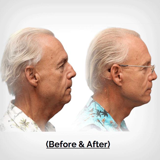 Male Neck Liposuction Plastic Surgery Payment Plans
