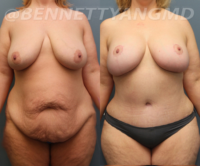 tummy tuck surgeon washington dc