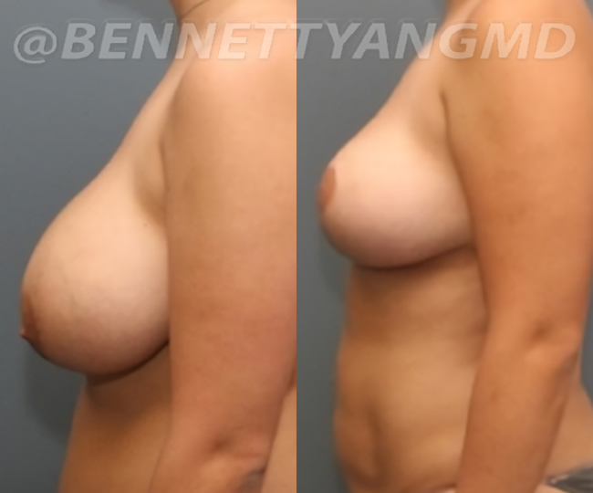 breast_aug_pt6_before-after_18n