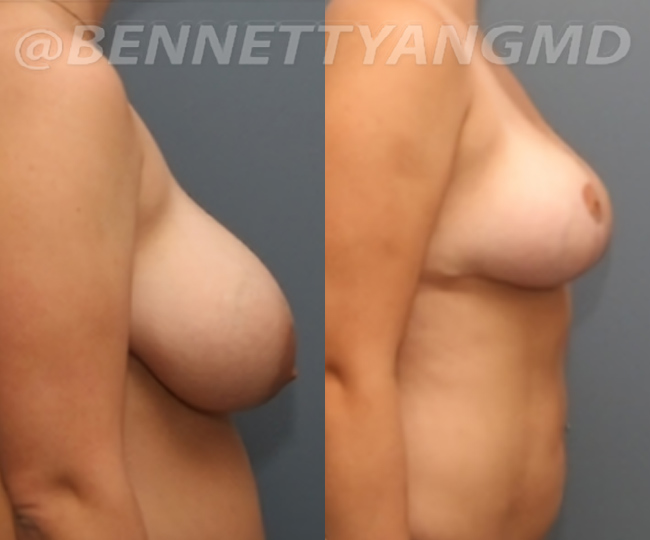 breast_aug_pt6_before-after_58n