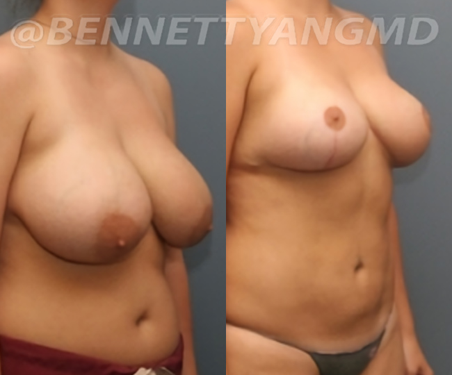 breast_aug_pt6_before-after_868n