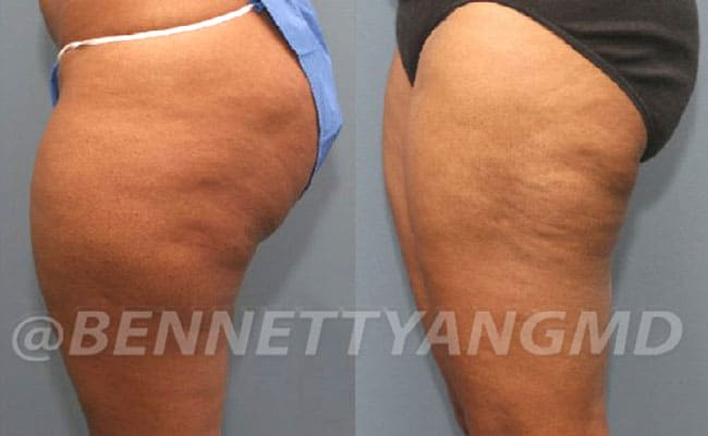 thigh-before_after-2a