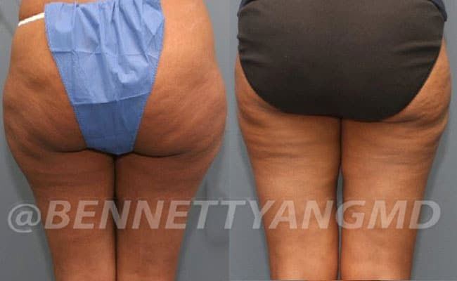 thigh-before_after-6a