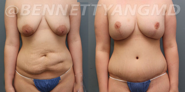 tummy tuck before and after images, tummy tuck surgeon washington dc