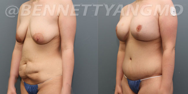 thumbs_liposuction-before_after-4wu