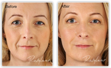 50% off Dysport - BOTOX Alternative. 1/2 off Liquid Facelift - Restylane & Dysport
